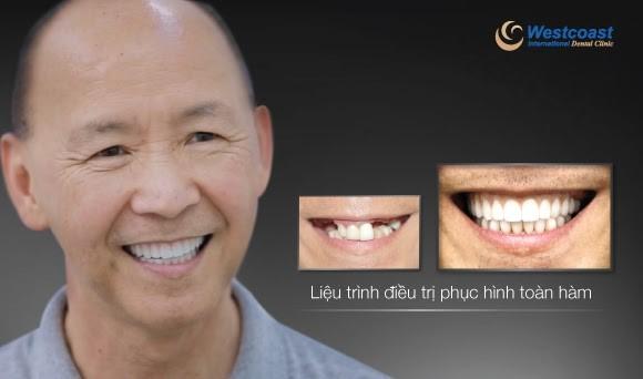 Nụ cười mới tự tin và rạng rỡ của chú Michael sau khi điều trị trồng răng implant thất bại