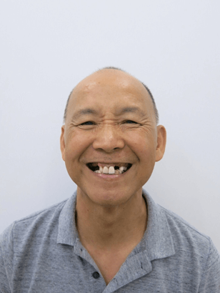 Tình trạng răng của chú Michael trước điều trị trồng răng implant