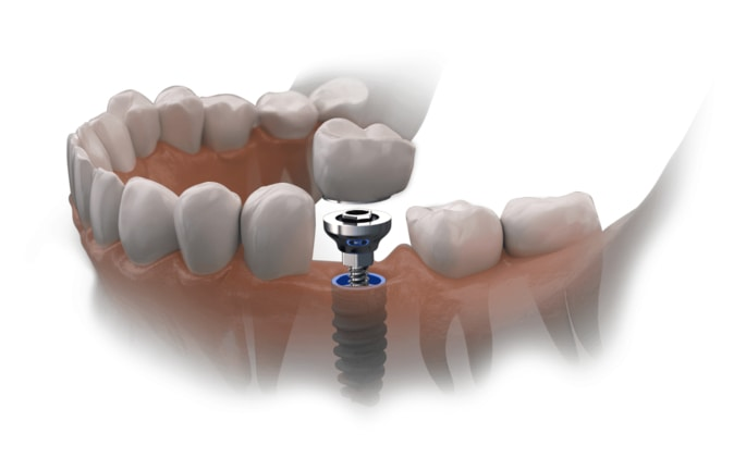 trồng răng implant tại nha khoa westcoast