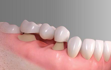 Ưu điểm răng Implant so với cầu răng sứ