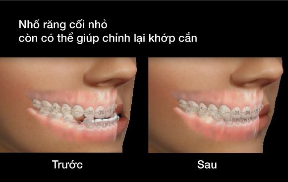 nhổ răng cối nhỏ có thể giúp chỉnh lại khớp cắn