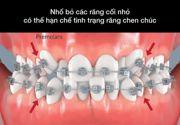 niềng răng không nhổ răng tại westcoast