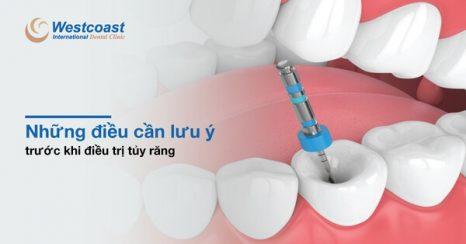 Những điều cần lưu ý khi điều trị tủy răng