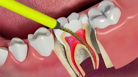 Quy trình lấy tủy răng - Nha Khoa Quốc tế Westcoast