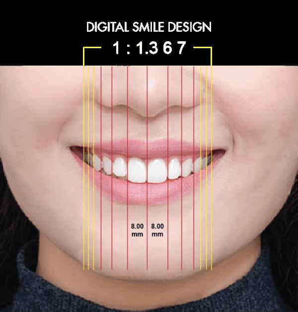 Công nghệ thiết kế nụ cười - Nha Khoa Westcoast